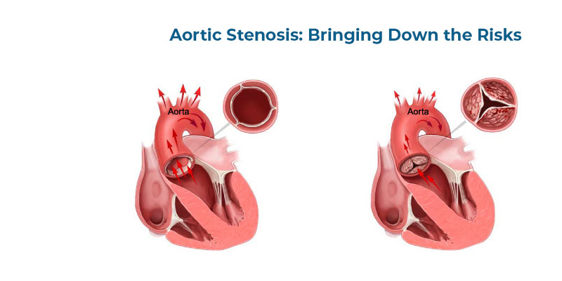 Aortic Stenosis Bringing Down the Risks - BM Birla Hospital