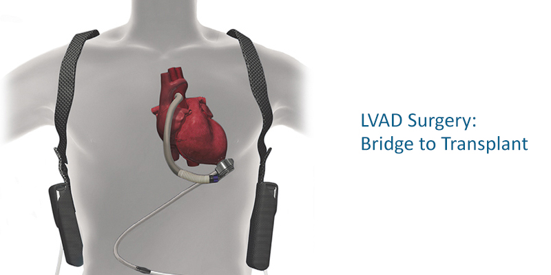 LVAD Surgery in Kolkata - Left Ventricular Assist Devices