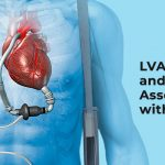 LVAD Surgery and Risks Associated with It - BM Birla Hospital