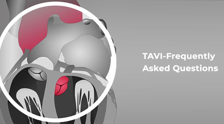 TAVI-Frequently Asked Questions - BM Birla Hospital