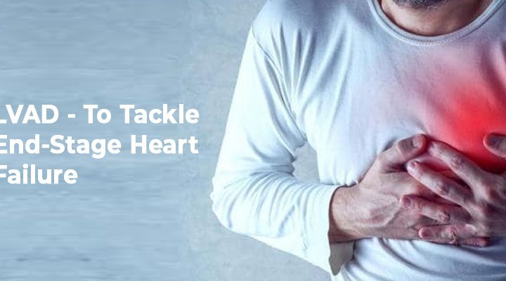 Left Ventricular Assisted Device (LVAD)- To Tackle End-Stage Heart Failure